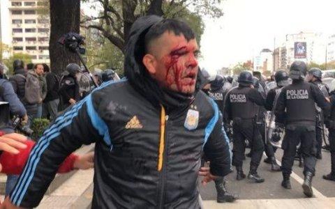 Fuerte represión a protesta contra el hambre en Argentina